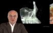 Anatomie et physiologie du sinus maxillaire