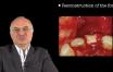 bone arvesting from retromolar area