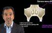 ce que vous devez savoir avant toute intervention concernant le sinus maxillaire