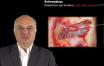 Greffe du sinus maxillaire : prévention et gestion des complications per-opératoires