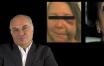 Greffe du sinus maxillaire  Prévention et gestion des complications post-opératoires (Première partie)