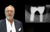 Les facteurs de risques infectieux en implantologie