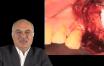 diagnostic et gestion des pathologies du sinus maxillaire avant greffe