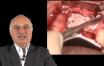 greffe osseuse d'apposition horizontale dans le secteur maxillaire antérieur : Téchnique chirurgicale