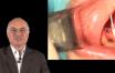 greffe d'apposition verticale dans le secteur mandibulaire postérieur