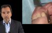 Technique chirurgicale de la greffe osseuse sous sinusienne
