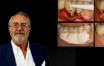 Traitement des péri-implantites (Deuxième partie)
