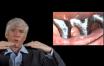 Les facteurs de risques : Défaut d'adaptation couronne / implant