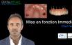 Mise en charge immediate au maxillaire