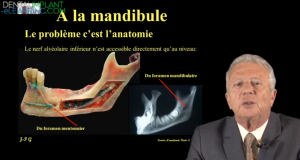 techniques d'analgesie à la mandibule
