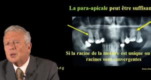 techniques d'analgesie au maxillaire