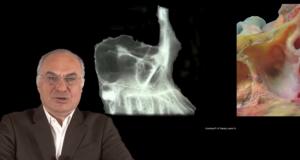 Greffe du sinus maxillaire: Aspect anatomique et physiologique