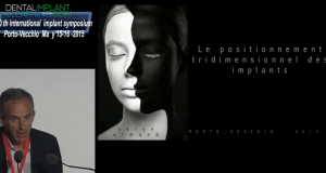 POSITIONNEMENT TRI-DIMENSIONNEL DES IMPLANTS