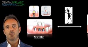 Gestion de l'édentation complète partie 5 : Réhabilitation par de la prothèse fixe à la mandibule.