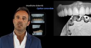 Gestion de l'édentation complète partie 6 : Réhabilitation du maxillaire.