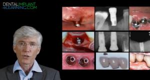 Les facteurs de risques : Introduction à la biomécanique implantaire.