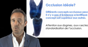 gestion de l'occlusion :introduction
