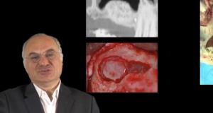 greffe du sinus maxillaire : complications liées à la qualité du greffon
