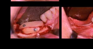 Reconstruction mandibulaire postérieure par greffe osseuse autogène