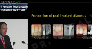 PREVENTION OF PERI-IMPLANT DISEASES : FUNDAMENTAL AND CLINICAL ASPECTS