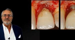 Traitement des péri-implantites (Première partie)