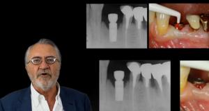 Mise en place d'implants sur patient parodontal